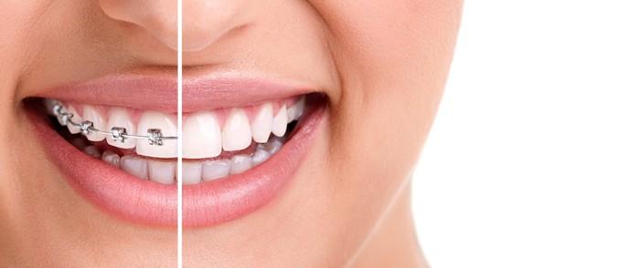 migliorare il sorriso con faccette e apparecchio