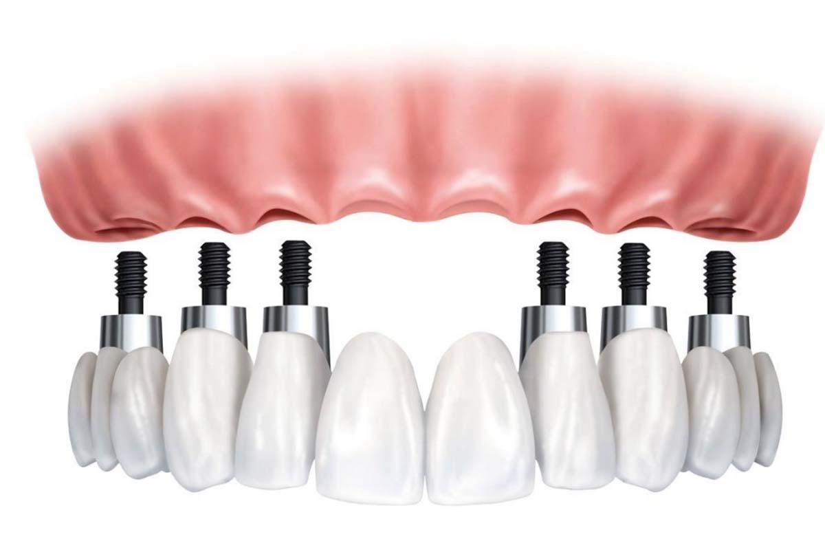 Implantologia Centro Daina